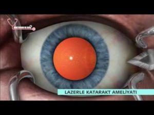 Замена искусственного хрусталика глаза в спб пенсионерам