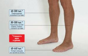 Сколько Платят За Сломанную Ногу По Страховке